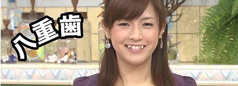 Yaeba-Japanese Teeth